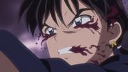 Miroku sangrando por el exeso de miasma absorbido.