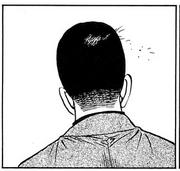 Round 1214 Shinoda hairloss