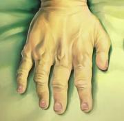 Mão direita de Chiquinho
