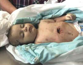 File:Gaza1.jpg