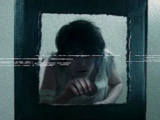 Patient 17999 (Video)