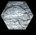 RetainingEyesMP1