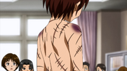 Masaru showing his scars