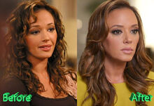 Leah-Remini-Before-and-After-Cosmetic-Surgery