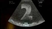 Grt two birth ident