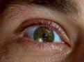 M-eye