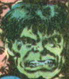 Robert Bruce Banner (Earth-99751)