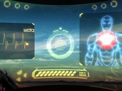 Suit Detects Heart Problem IMAA