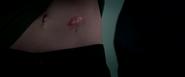 Nat's Scar
