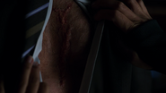 Phil Coulson's Scar