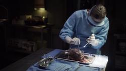 19-Simmons Remorath Autopsy