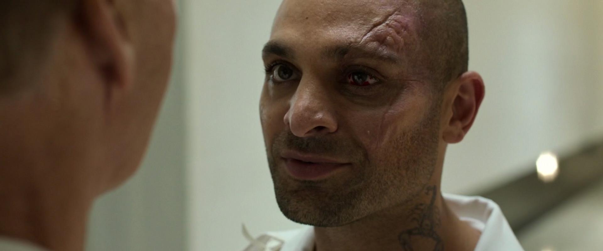 Mac Gargan damaged face