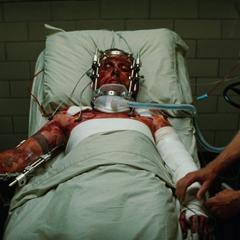 Blonsky queda gravemente herido.
