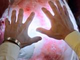 Healing Gloves