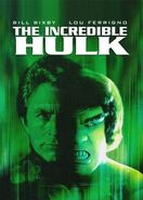 Incredible Hulk 1977 series