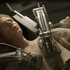 Steve get's injected.