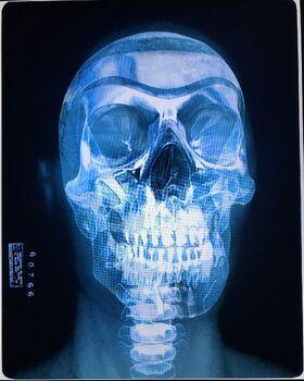 Harry Beauregard x-ray