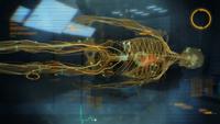 Project lazarus - shep skeleton (after)