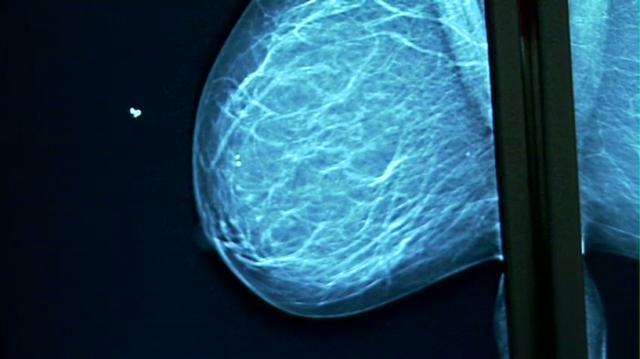 About breast screening