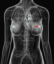 Breast-cancer225