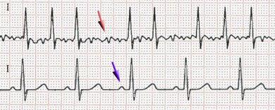 Fibrilatie-atriala-si-ritm-sinusal