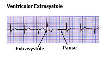 Ventricular-extrasystole-ECG