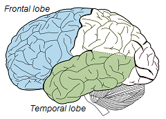 File:Frontal-Temporal Lobe.png