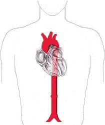 Aorta-diagram