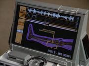 Riker's leg scan