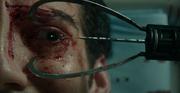 Eye extractor