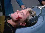 Direct reticular stimulation