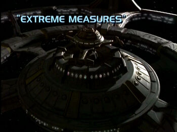 Extreme Measures title card