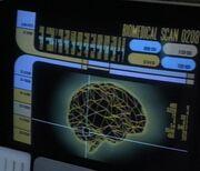 Neurogenic field