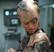 Seven of Nine with dermaplastic grafts