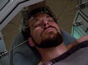 Riker Stimulation der Nerven