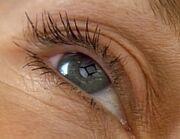 Leijten's eye