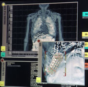 Triannon internal scan