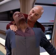 Picard nerve pinch