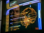 Tuvoks Gehirn