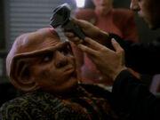 Quark treated with dermal regenerator