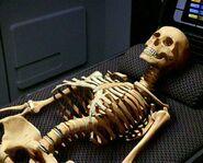 Vidiian skeletal system