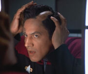 Chakotay losing hair