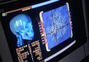 Bajoran skull scan