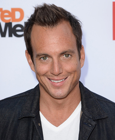 Will Arnett | Men in Black Wiki | FANDOM powered by Wikia Will Arnett Hair Transplant Before And After