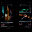 Escáner Tentáculo de Phazon MP3