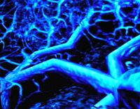 Phazon Azul