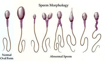 Men shooting sperm