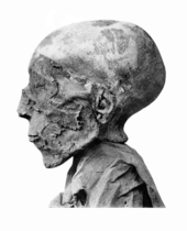 Seti II mummy head