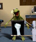Kermit-xray-photo