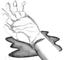 Cut wrist